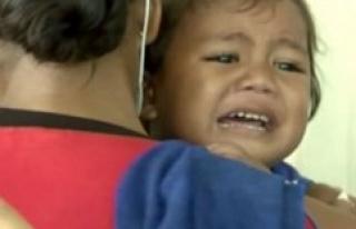 29 children died after mæslingeudbrud