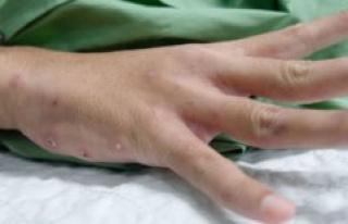 Scabies epidemic puts doctors under pressure: Now...