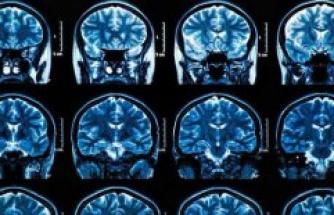 Even in the case of mild symptoms: Corona-Ill suffering from severe brain damage